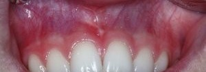 Frenectomy After