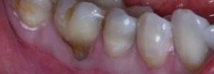 Gum Graft Before
