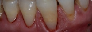 Cavities on Root Surfaces After