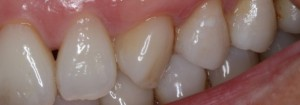 Gum Grafts After